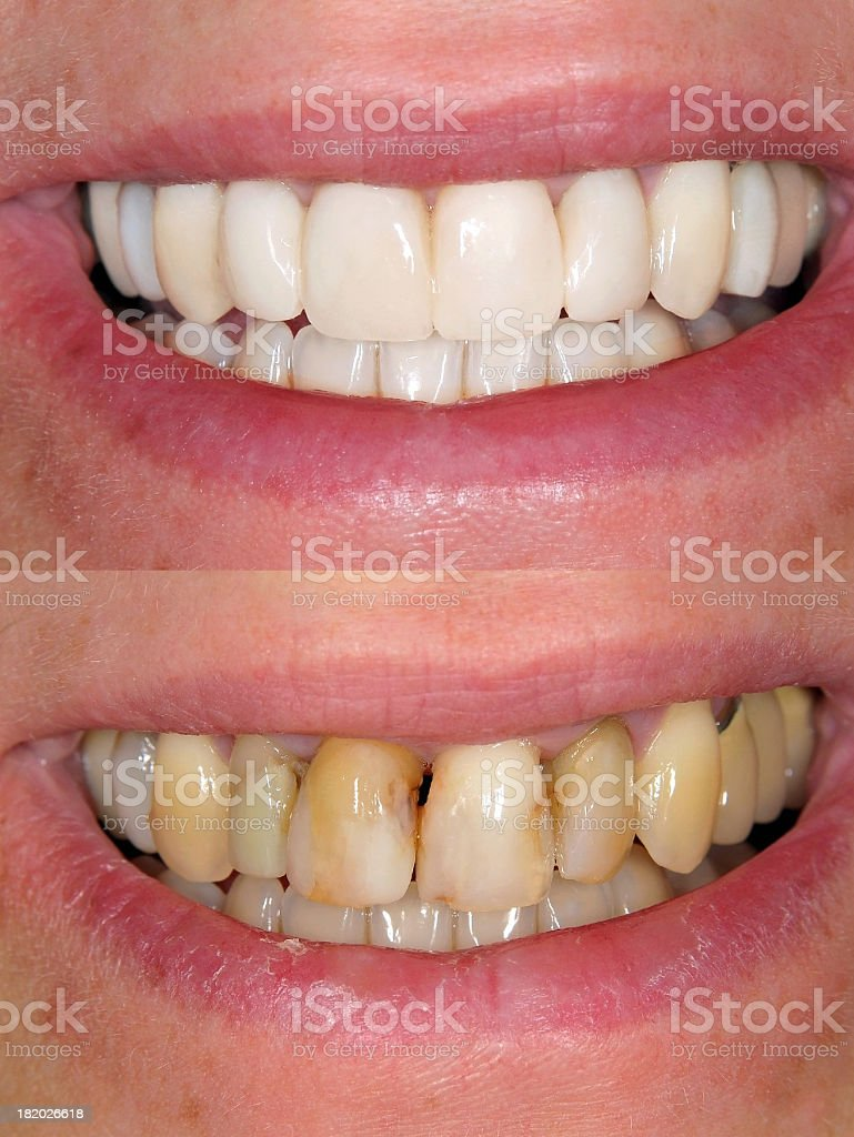 Before & After Smile Design royalty-free stock photo