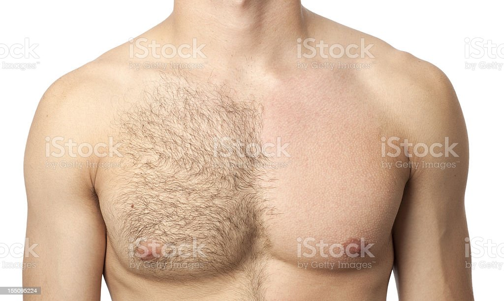 Before & after waxing treatment stock photo