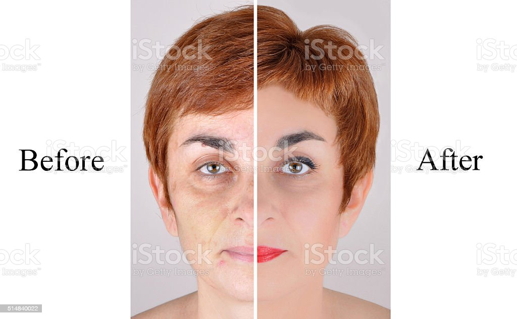Before and after beauty treatment stock photo