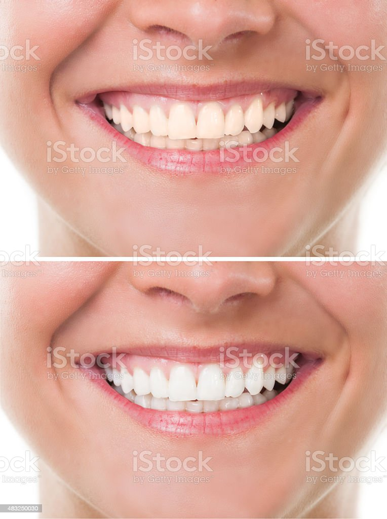 Before and after bleaching or whitening stock photo
