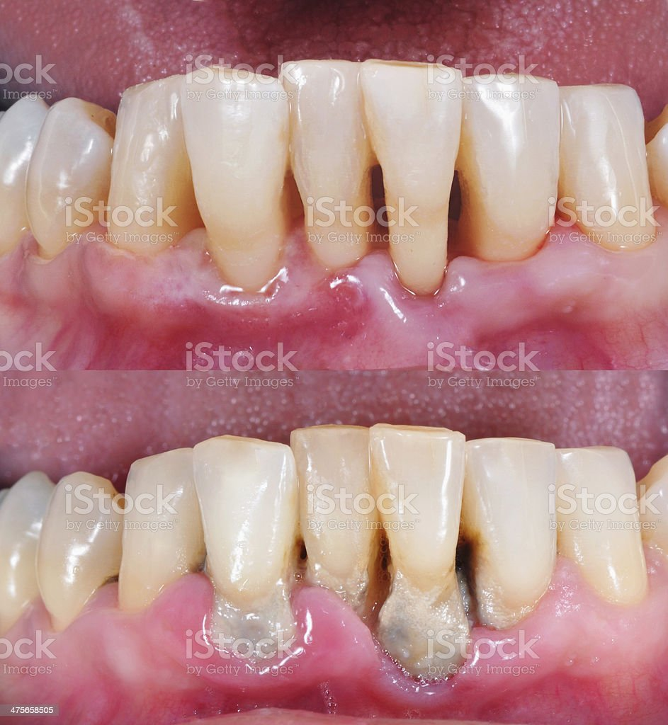 Before and after cleaning stock photo