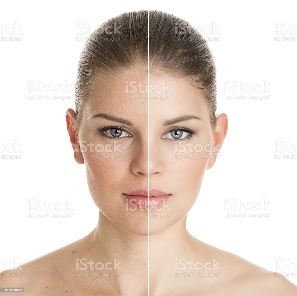 Before and after cosmetic operation stock photo