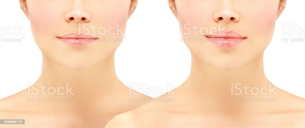 Before and after lip injections. stock photo