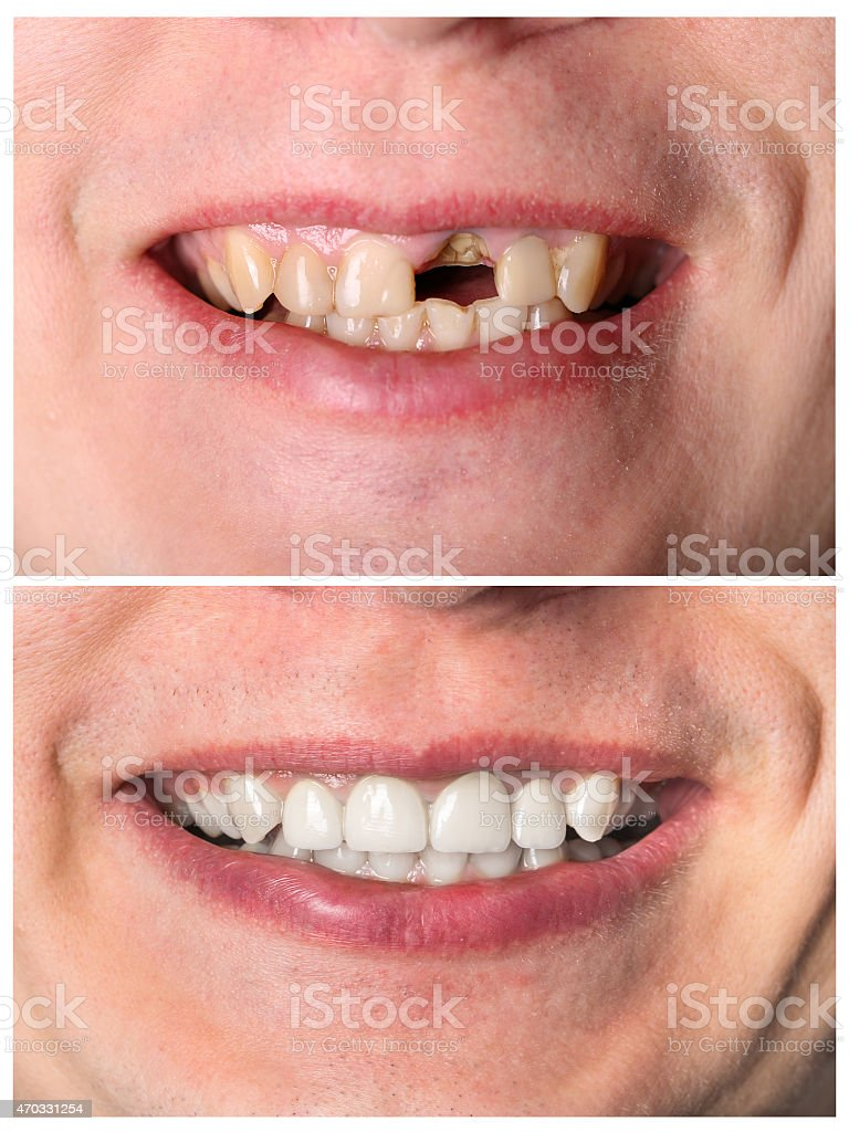 Before and after of a incisive tooth restoration treatment stock photo