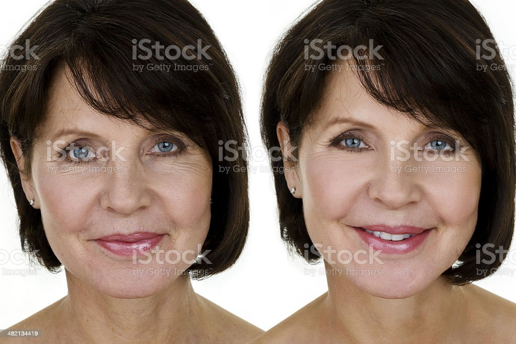 Before and after of a mature woman stock photo