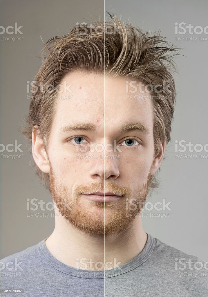 Before and after retouching stock photo