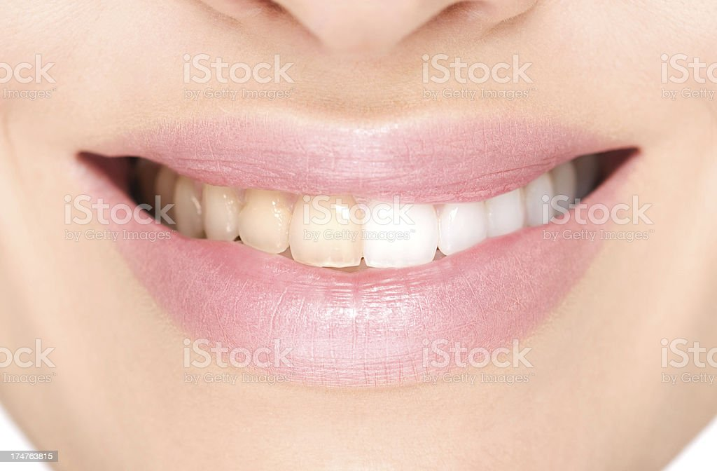 Before and after teeth whitening. royalty-free stock photo