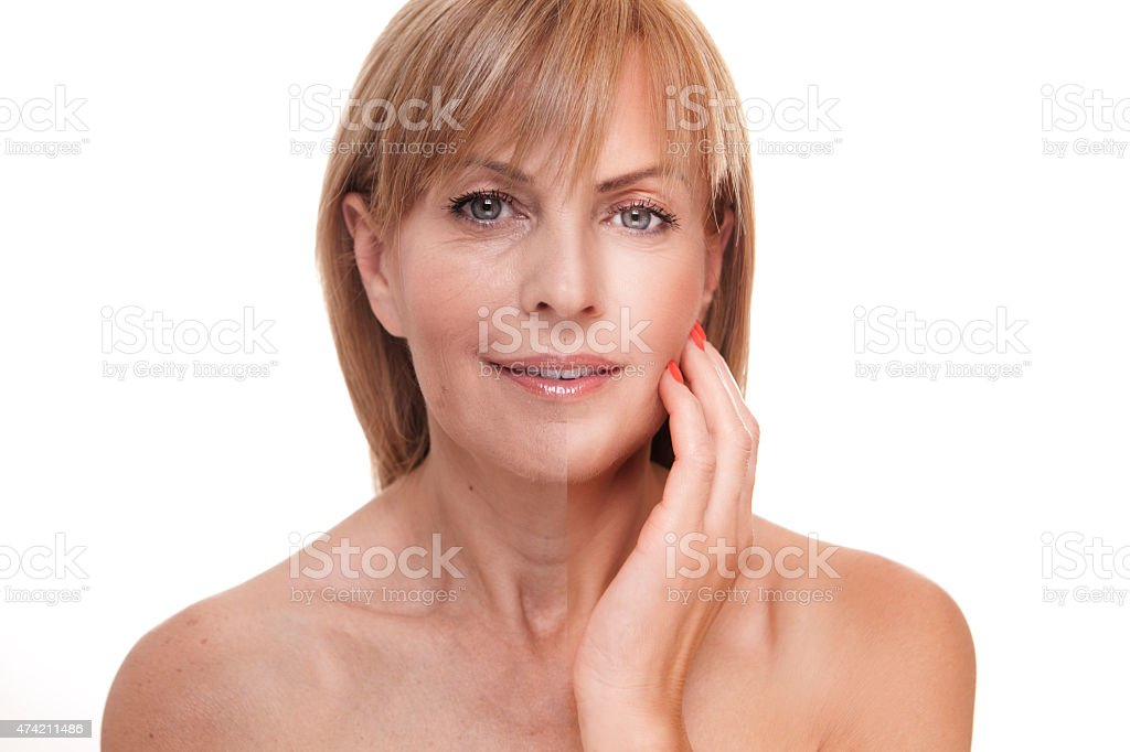 Before-and-after of mature woman stock photo