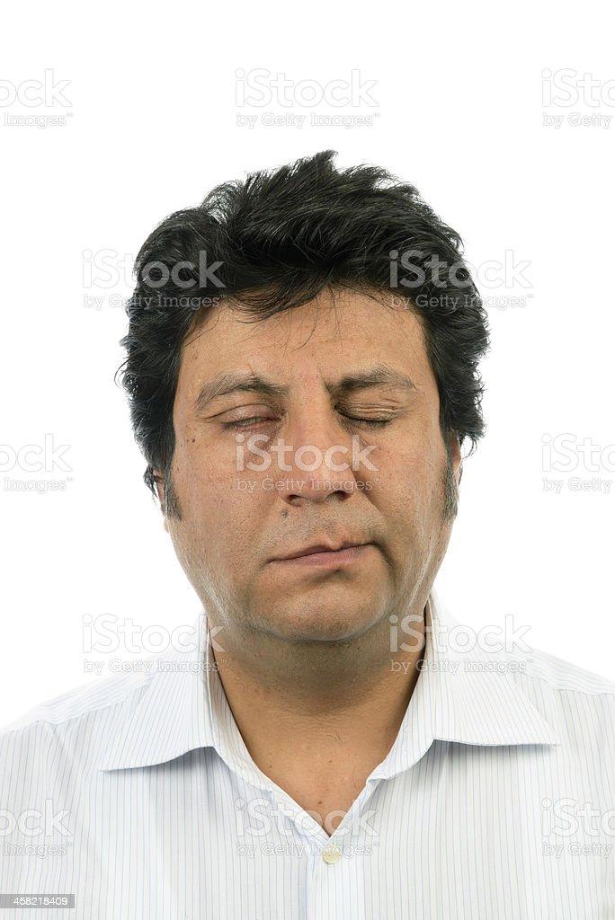 Bell's Palsy(Peripheral Facial Palsy) stock photo