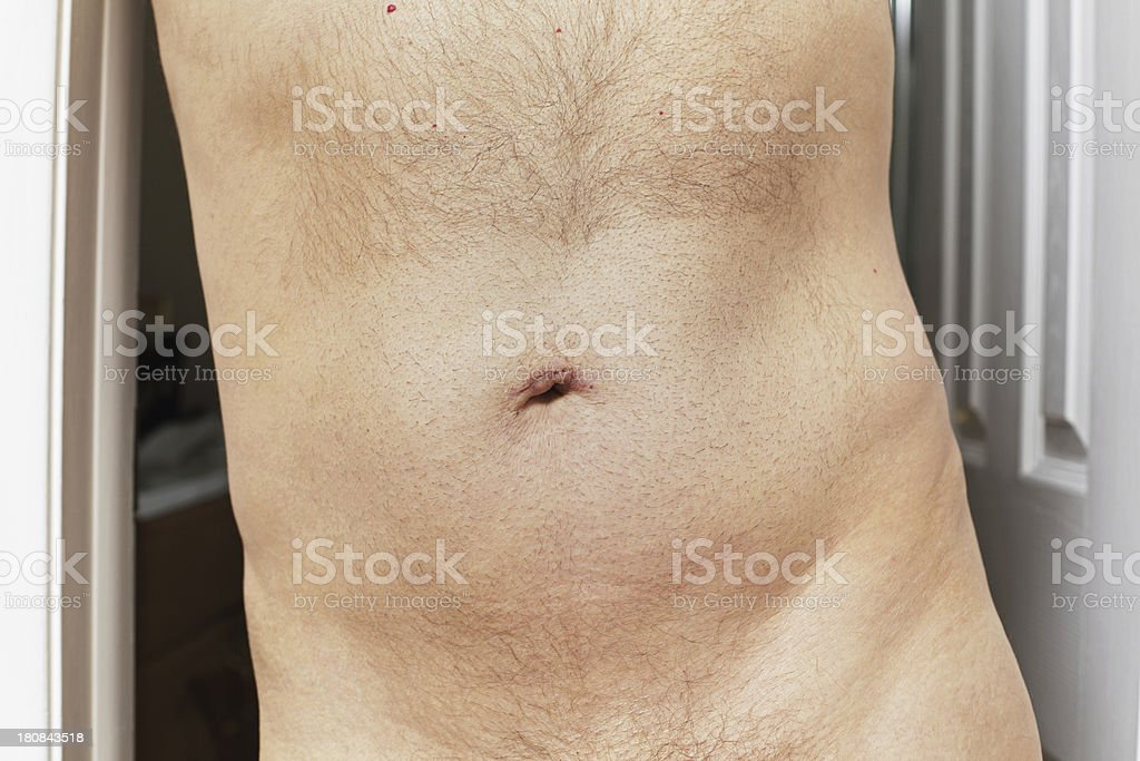 Belly Button Scar Healing After Umbilical Hernia Surgery stock photo
