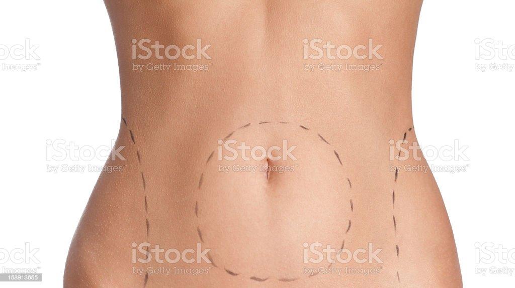 Belly plastic correction stock photo