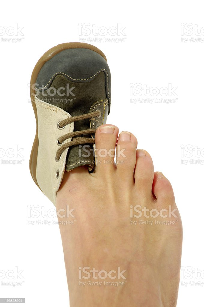 Big foot small shoe stock photo