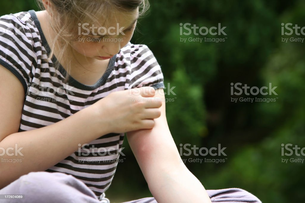 big mosquito bite stock photo