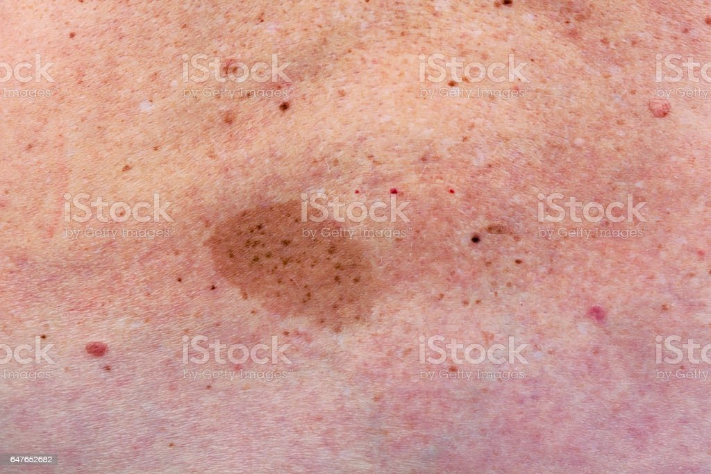 Big skine  birthmark on lumbar part of a back of the elderly woman. People problem concept  background stock photo