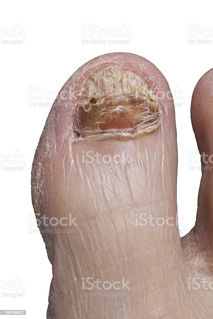 Big Toe With Severe Toenail Fungus royalty-free stock photo