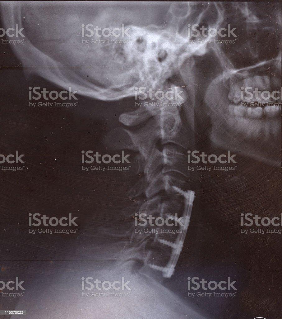Bionic Man Profile on X-Ray royalty-free stock photo