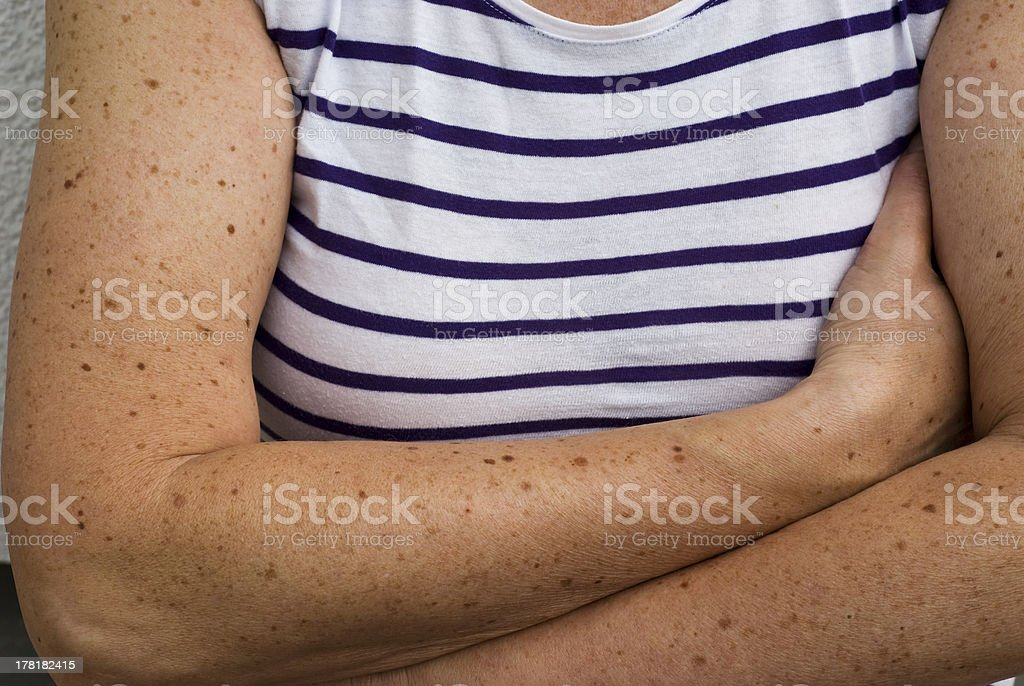 Birthmarks stock photo