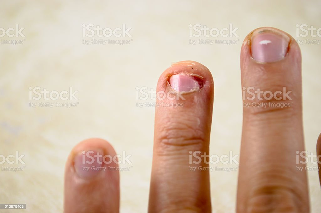 bitten and picked at finger nail stock photo