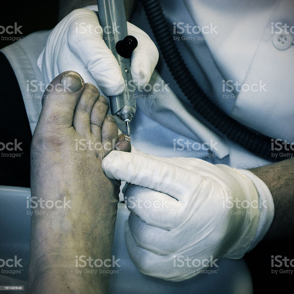 Black and white image of chiropody treatment. royalty-free stock photo