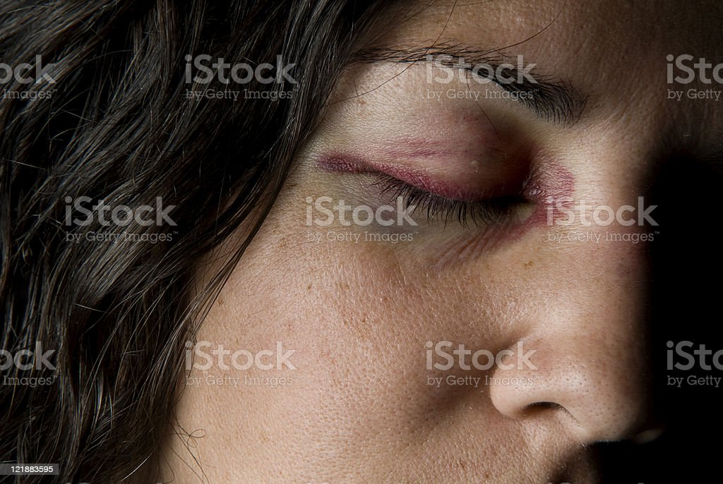 Black Eye royalty-free stock photo