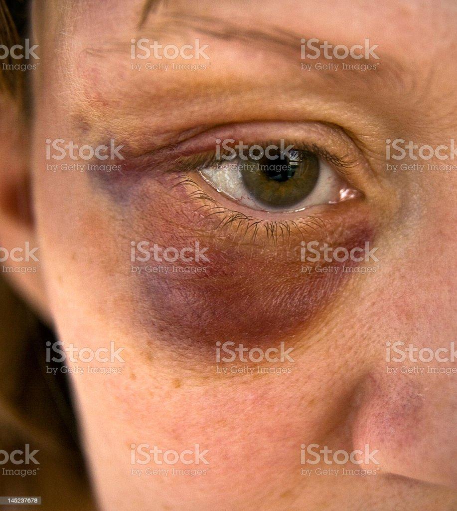 Black eye. royalty-free stock photo