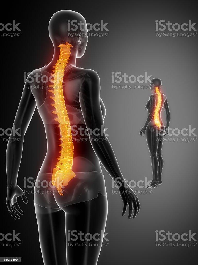 SPINE black x--ray bone scan stock photo