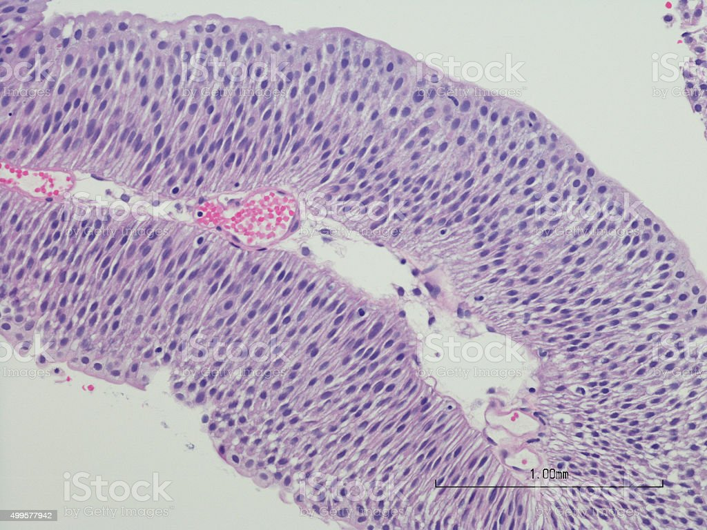 Bladder with low grade papillary urothelial carcinoma. stock photo