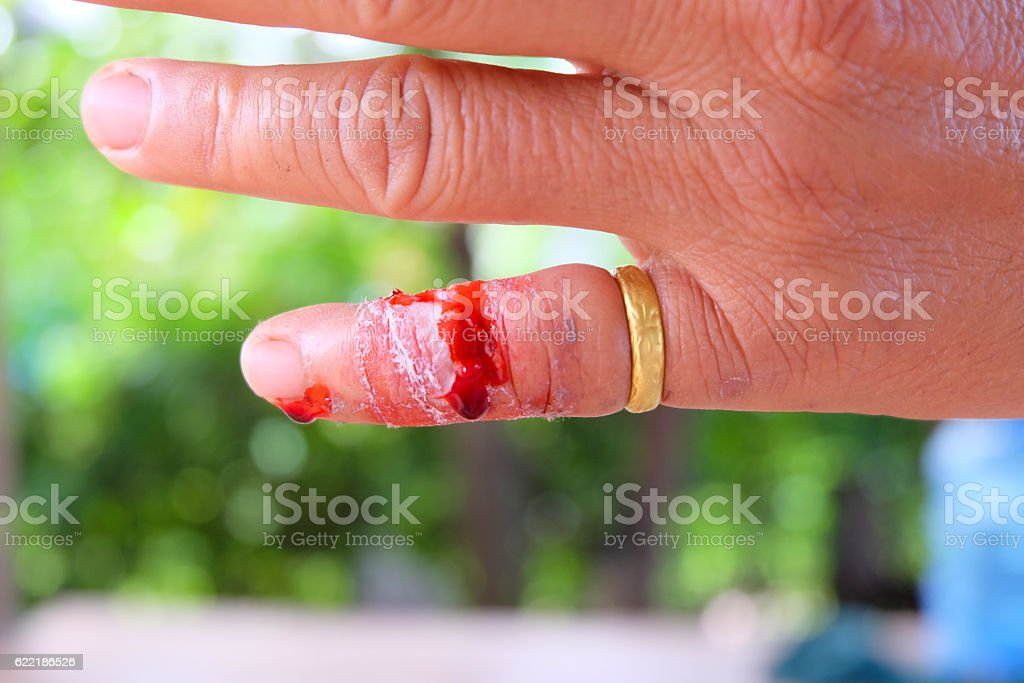 bleeding wound on finger at right hand on blur background stock photo