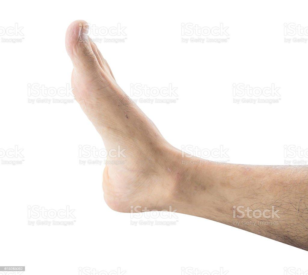 blemish on the skin leg. macro stock photo