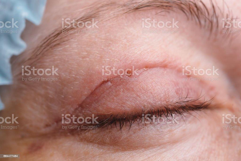 Blepharoplasty of the upper eyelid. stock photo