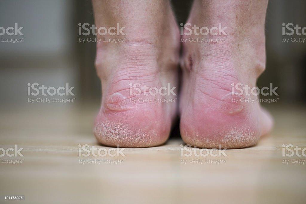 Blister heels stock photo