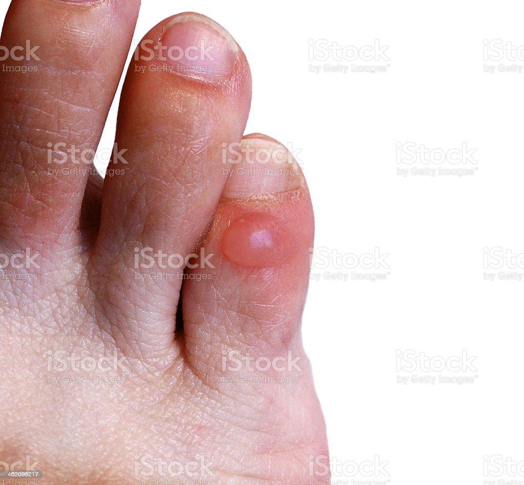 Blister on little toe stock photo