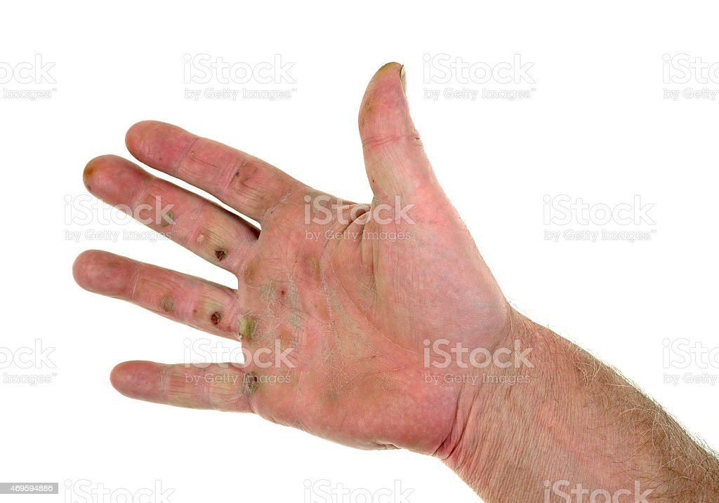 Blistered hand stock photo