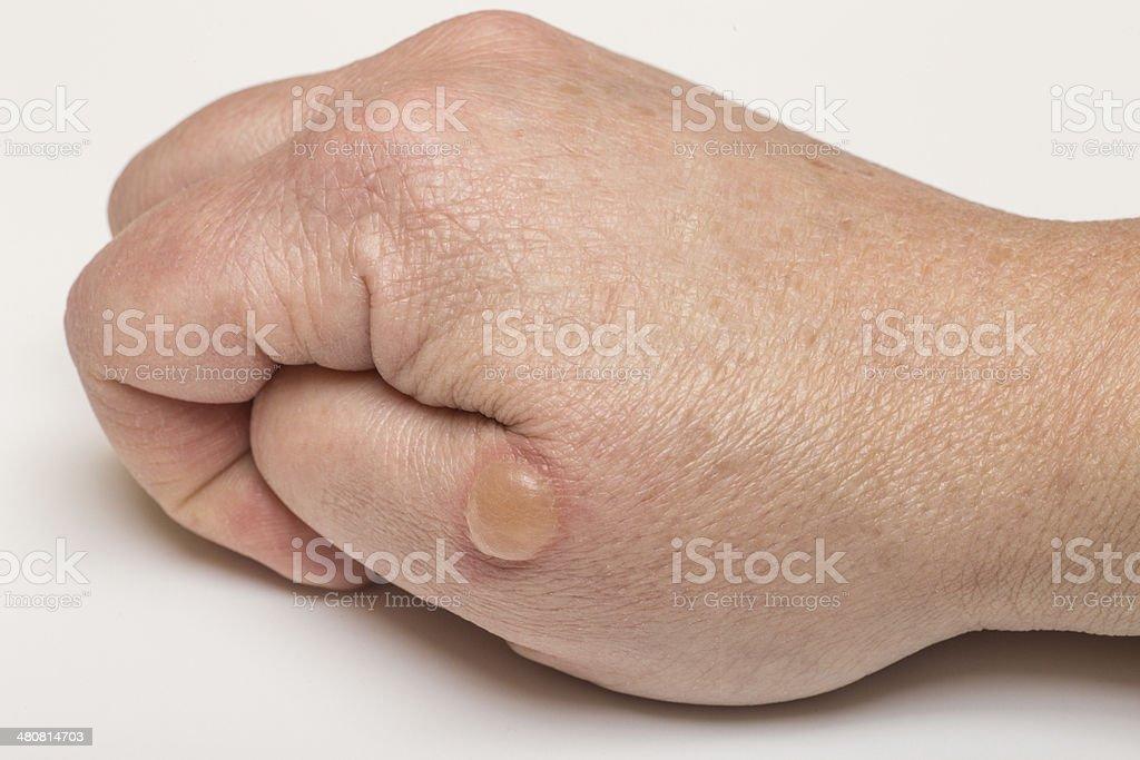 Blistered Skin stock photo