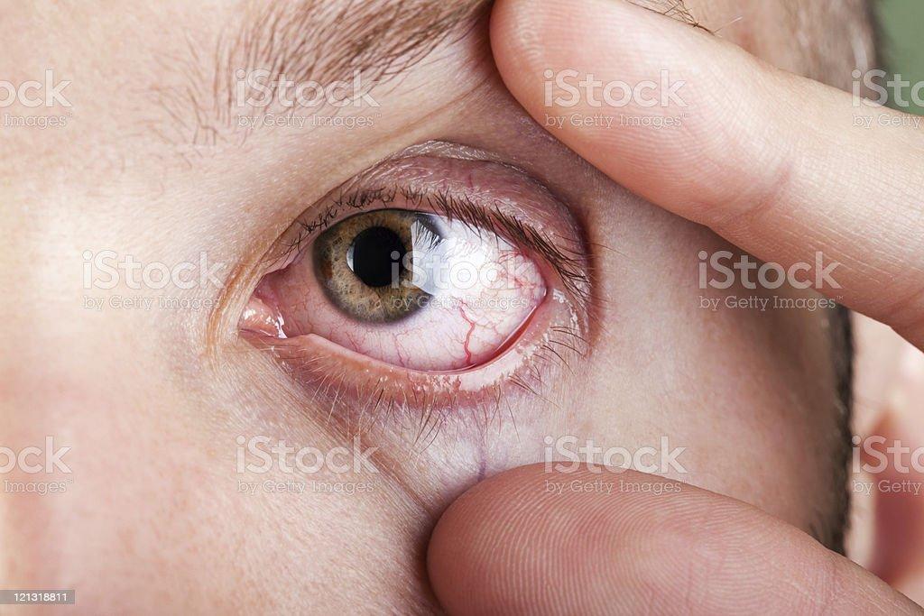 Blood capillary human eye royalty-free stock photo