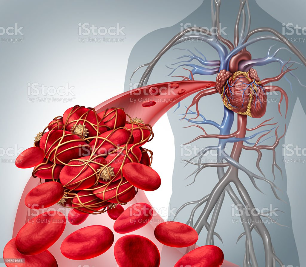 Blood Clot Risk stock photo