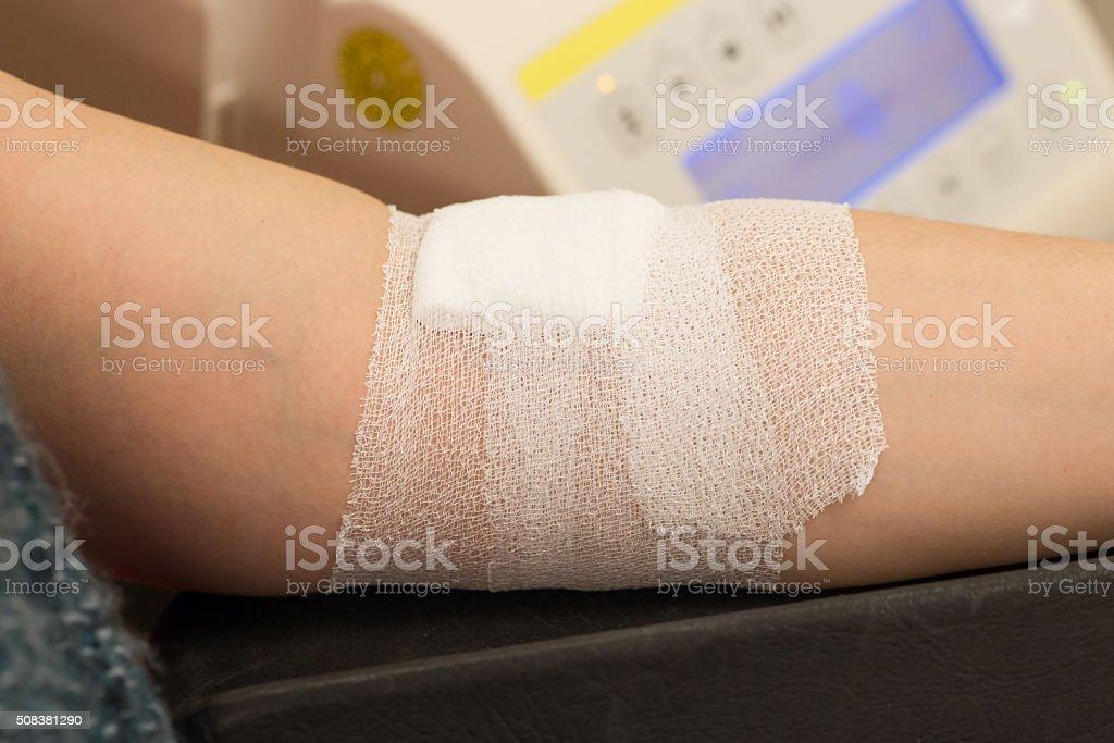 Blood donation process stock photo
