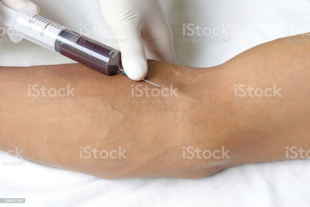 Blood extraction stock photo