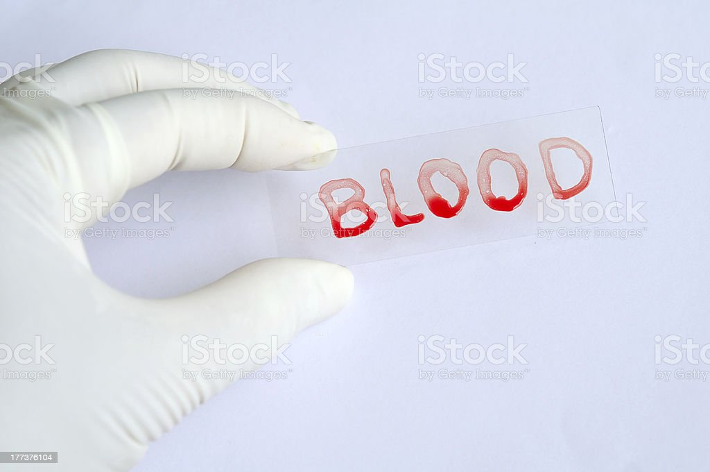 Blood film royalty-free stock photo