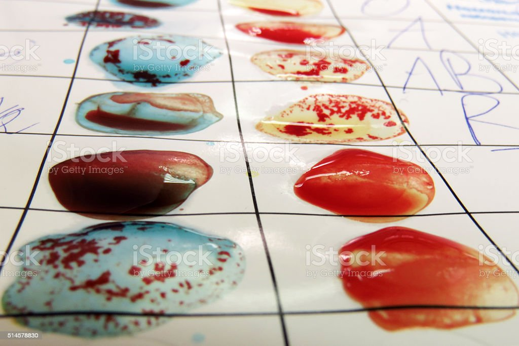 Blood Grouping stock photo