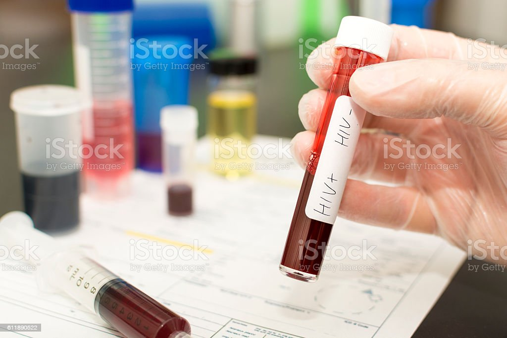 HIV+ HIV- blood in a test tube stock photo