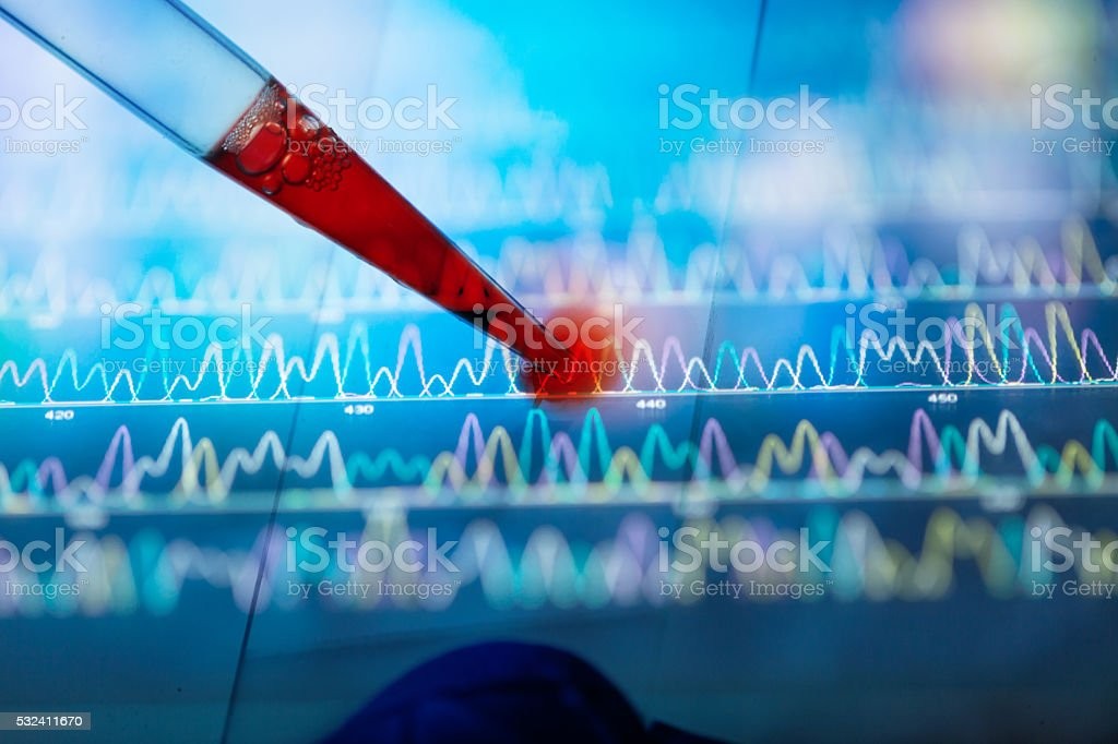 blood in glass slide stock photo
