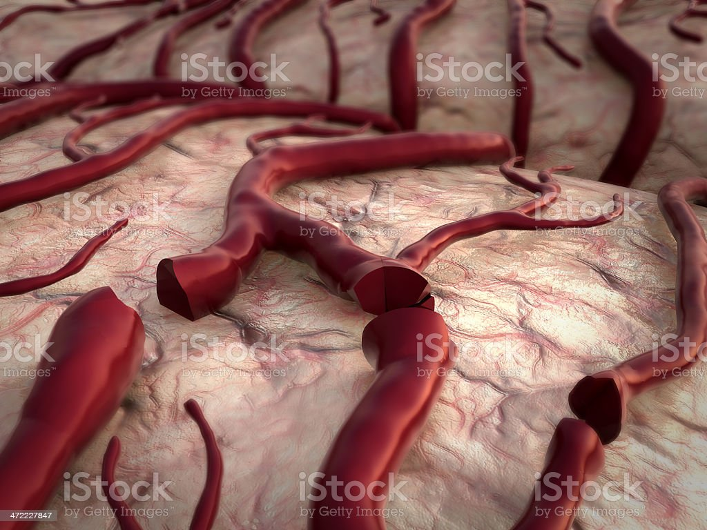blood loss, insult stock photo