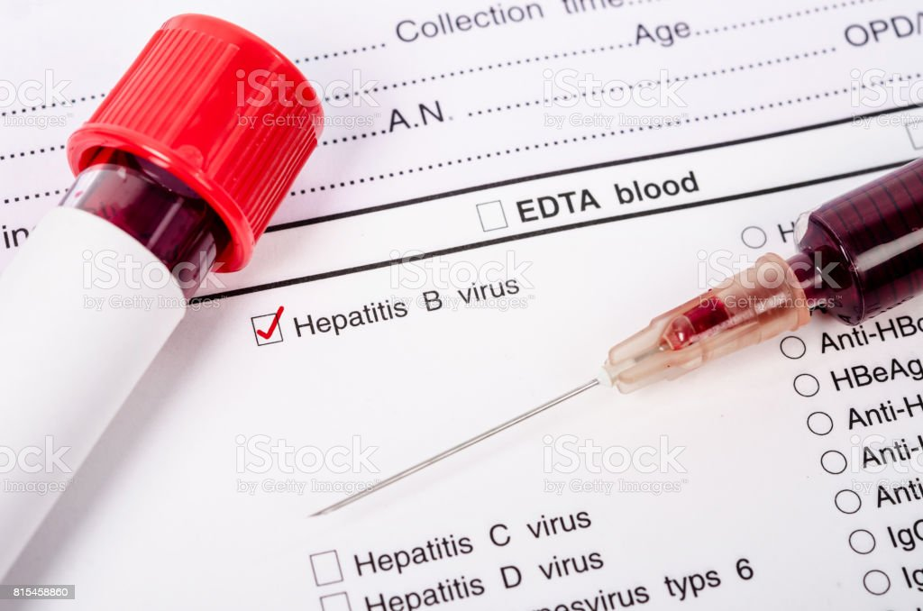 Blood sample for hepatitis B virus (HBV) testing. stock photo