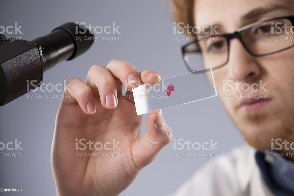 Blood sample on microscope slide stock photo