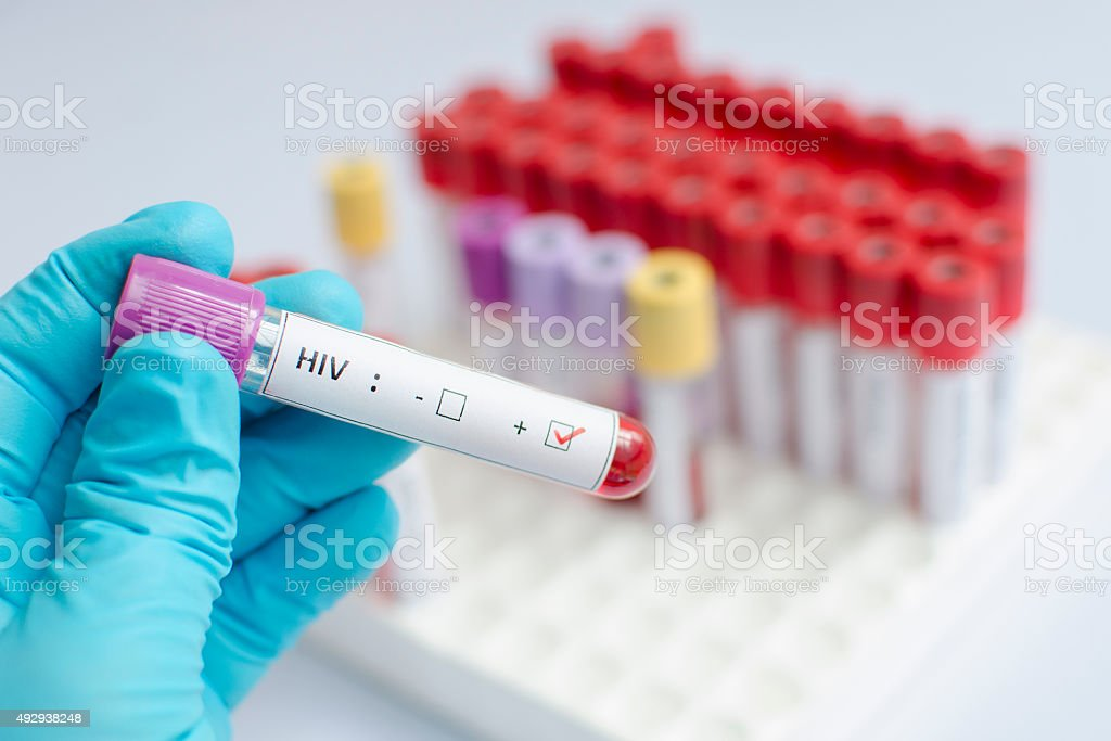 HIV blood sample stock photo