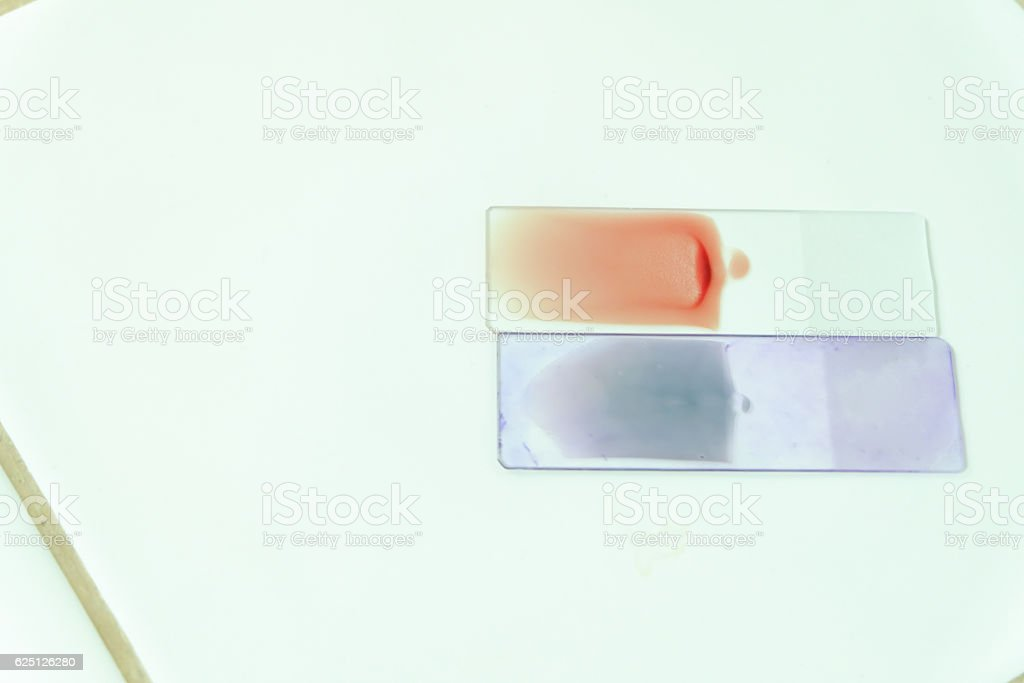Blood smear for hematology microscopic examination stock photo