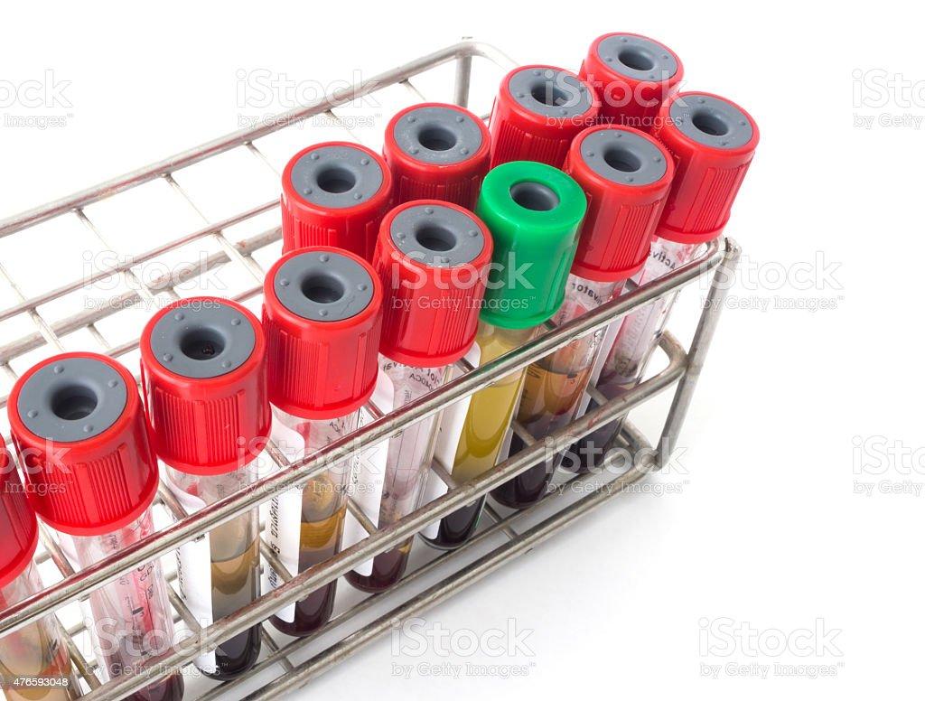 Blood specimen tubes. stock photo