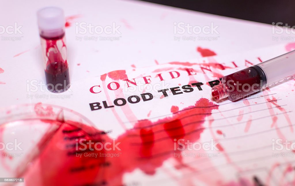 Blood Test Accident  - Laboratory Test stock photo