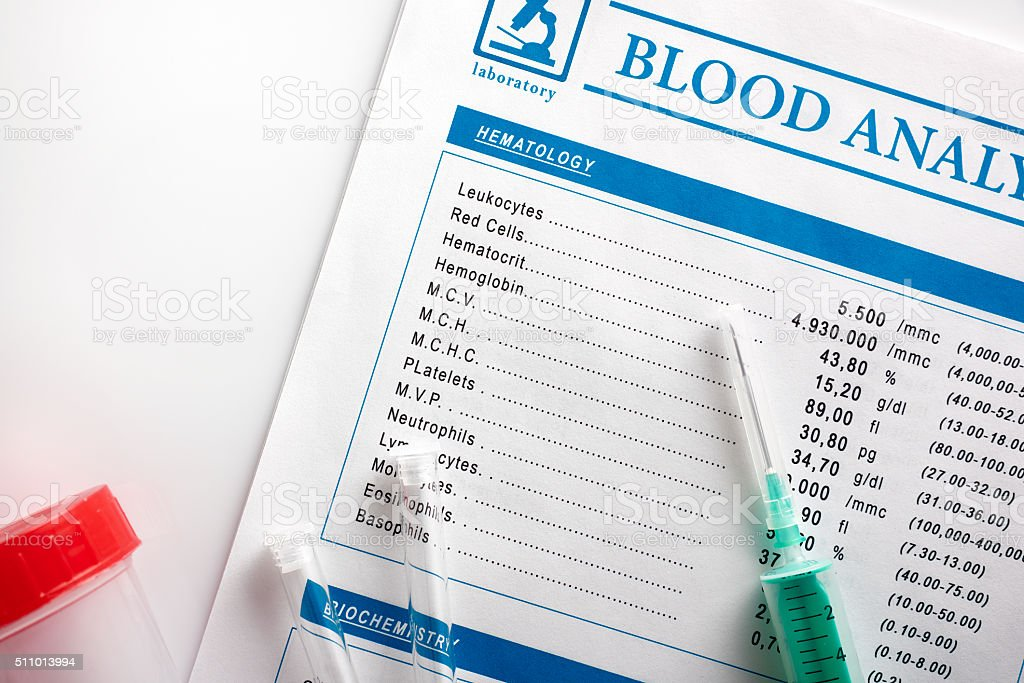 Blood test report with vials urine container and syringe top stock photo